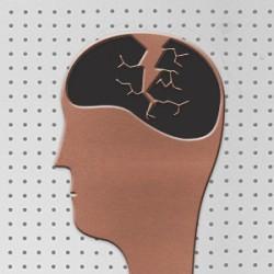 85198.06 Broken Brains 300x300